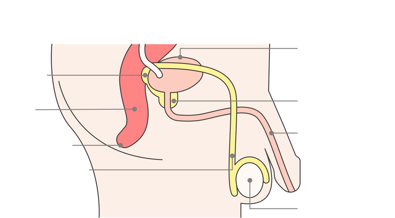 Prostatitis T